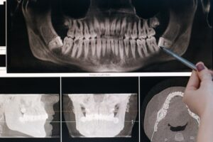 radiografia-panoramica