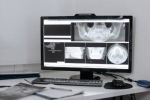 história da radiologia odontológica